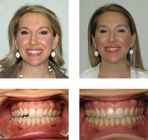 Invisalign 174 Before Amp After Photos San Antonio Tx Vk